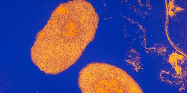Pertussis bacteria (Bordetella pertussis)